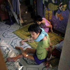 Жертвы Агента Оранж во Вьетнаме