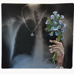 Вышивка по медицинскому рентгену
