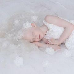 Красота людей-альбиносов в снимках Yulia Taits